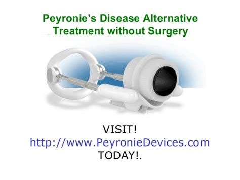 peyronies disease treatment south africa picture 3