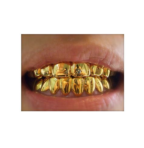 find people that does gold teeth in houston picture 10