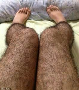 laser hair removal colorado picture 11