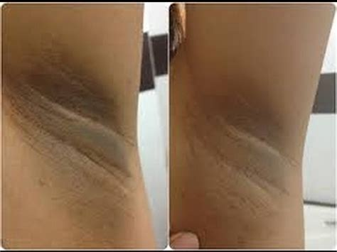 acanthosis nigrosis xtreme brite gel picture 1