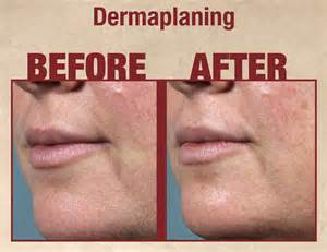laser hair removal treatment picture 1
