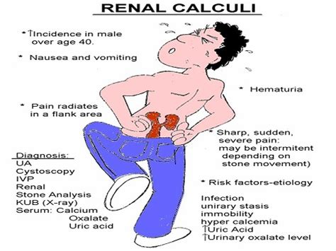 renal failure diet picture 6