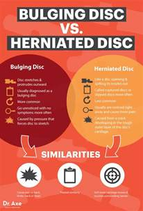 disc pain relief picture 2