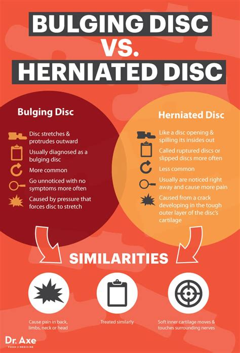 herniated disc pain relief picture 3