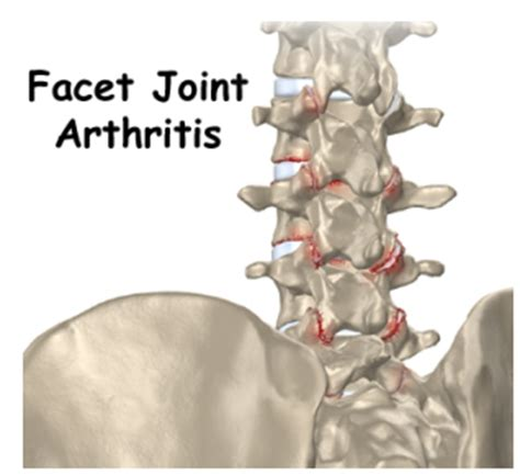 arthritis joint injections picture 5