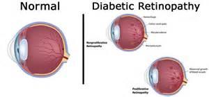 diabetics eyes picture 7