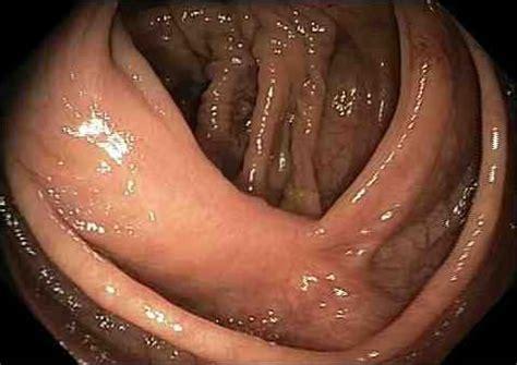 colon polyp picture 9