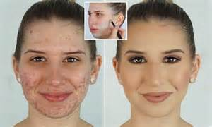 conceal genital acne picture 15