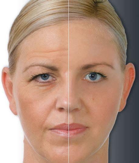 facial brighteners picture 5