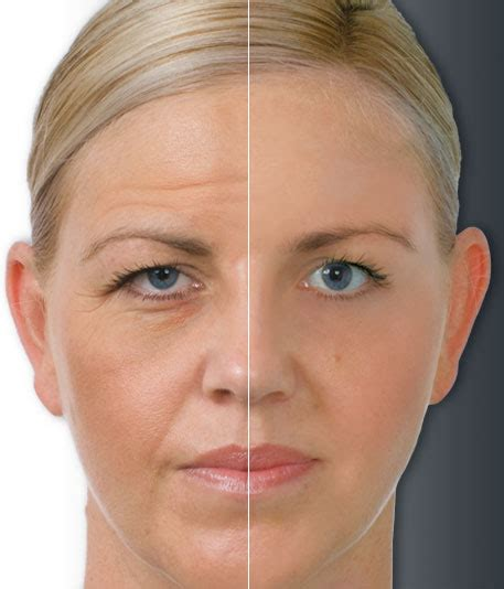 aging botox treatment picture 5