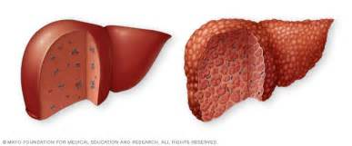 liver with cirrhosis picture 13