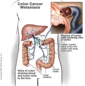 metastatic liver cancer treatment picture 13