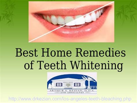 best whitening for teeth picture 2