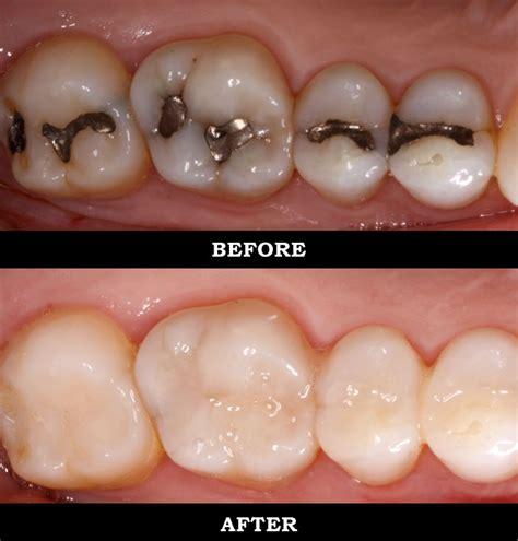 cavaties in teeth picture 3