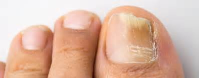 foot fungus laser treatment centers in indiana picture 3