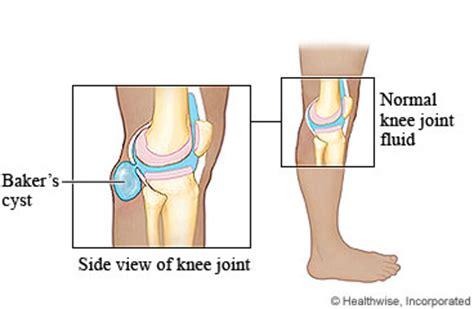 fluid joint picture 13