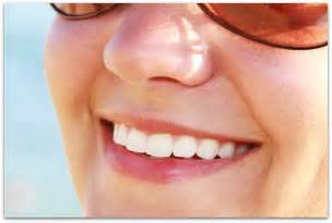can you whiten teeth naturally picture 5