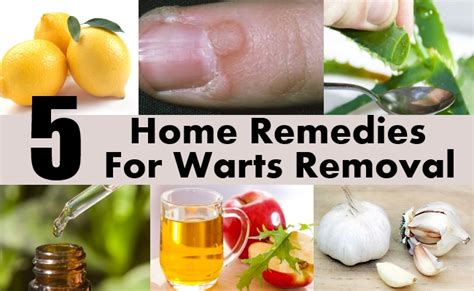 natural remedy for wart removal on lip picture 1