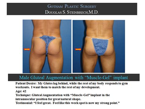 new york, penile fat injections by female dr. picture 9