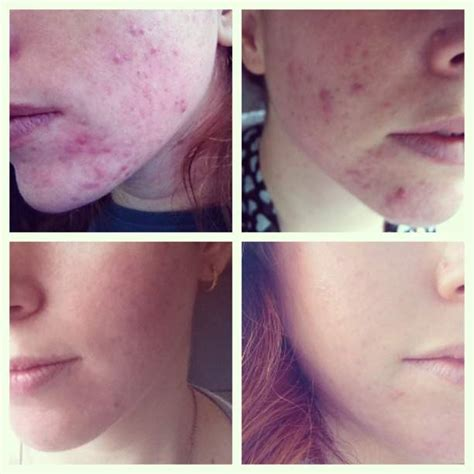 aldactone helping acne picture 5