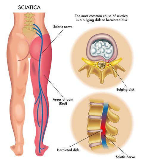 back ache leg pain picture 6