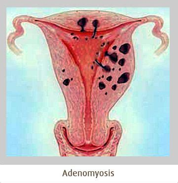 does coq10 cause heavy periods picture 5