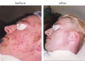 best acne medication picture 6