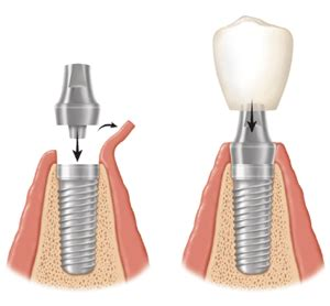 can dental hygients remove cement from h with picture 7