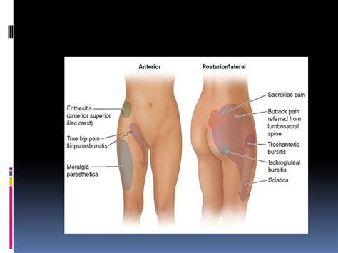 sacroiliac joint pain symptoms picture 13