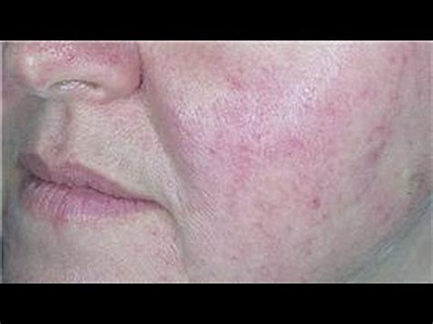 dry skin acne picture 7