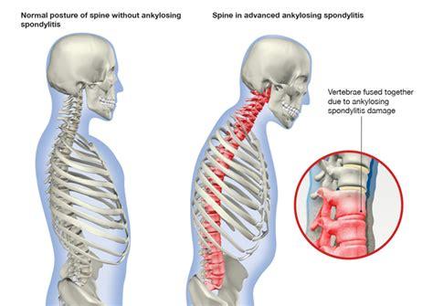 sacroiliac joint pain symptoms picture 9