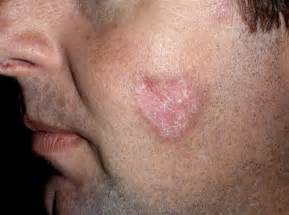 lupus and skin cancer picture 9