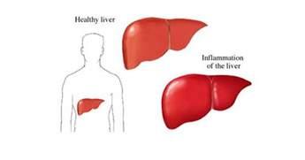 healthy liver hep c magazine picture 11