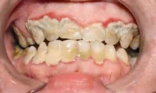 calcium teeth white picture 9