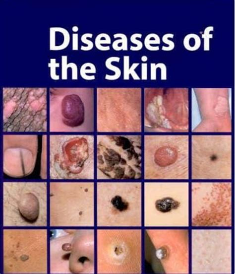 diseases of the skin picture 1