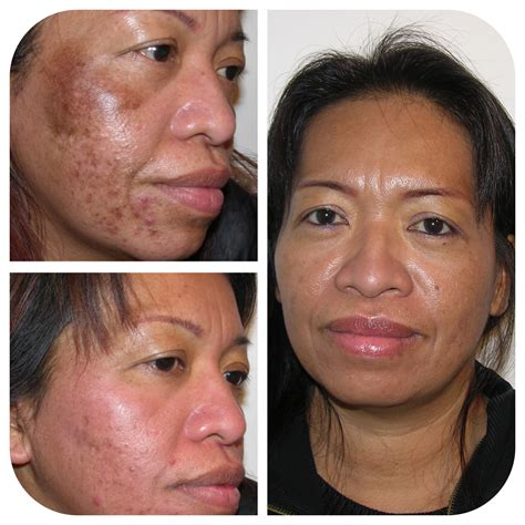 skin care for melasma picture 2