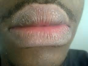 chapped lips picture 10