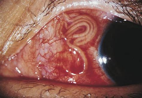 How do intestinal parasites look with the eye picture 3