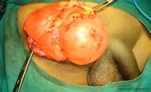 bladder cancer tumor size picture 9