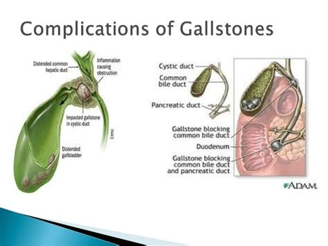 gall bladder infection picture 7