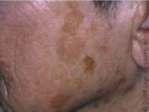 chemical l for sun damaged skin picture 7