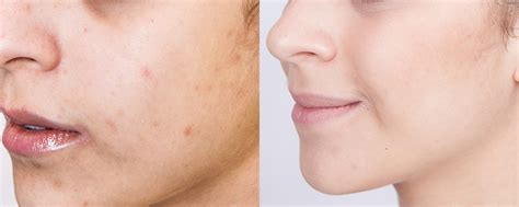 zinc oxide and acne picture 10