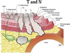 fatty liver tumor picture 3