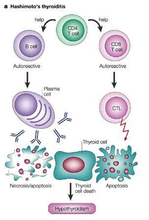 autoimmune thyroid disease picture 1