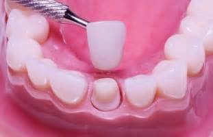 crowns for teeth picture 9