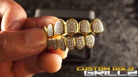 custom gold teeth picture 3