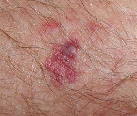 staph on the skin picture 1