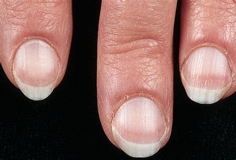 fingernails show signs of liver failure picture 1