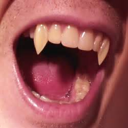 vampire teeth picture 2