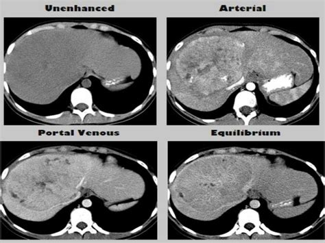 hemangioma of the liver picture 10